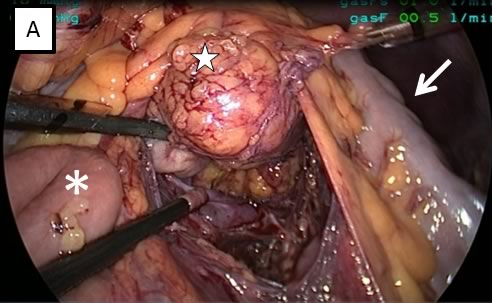 Figure 2: Intraoperative picture showing A: The transverse colon (arrow) was grasped and moved up to better expose the retroperitoneal mass (white star), which was huge, polilobate and containing numerous cysts. B: Aspiration of the largest cyst of the mass before its complete removal. C: Dissection of the mass from the left renal vein (arrowheads).