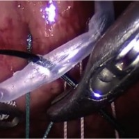 Fig. 1 The cannula is kept steady by the 3 mm grasper and pierced by the needle.